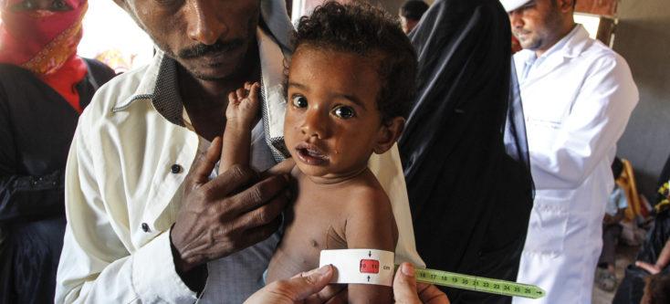 Malnutrition in Jemen - Humanity House